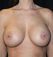 Efter billede brystforstørrelse