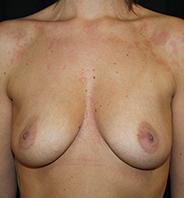 Førbillede brystforstørrelse