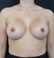 BFO efter billede - resultat efter brystforstørrelse