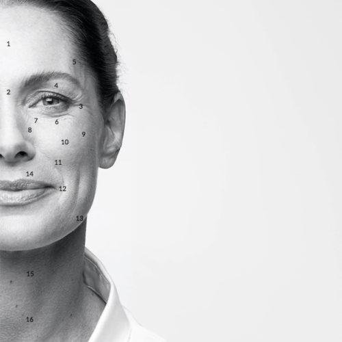 Hvor kan Botox benyttes? Rynkeguide