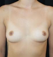 Før brystforstørrende operation hos AK nygart